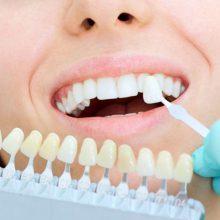 Актуальные вопросы реставрации зубов